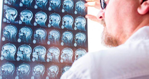 аневризма мозку