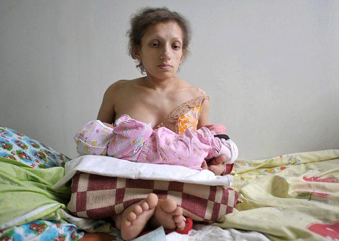25 вересня у Червонограді померла найнижча мама в країні – 36-річна Марія Українець