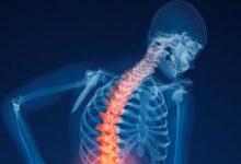 20 жовтня – Всесвітній день профілактики остеопорозу