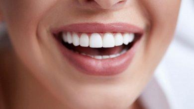 Імплантація зубів у Futurum Dentistry